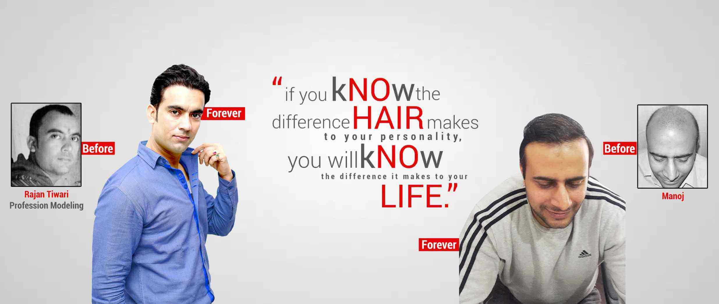 Hair Transplant in ghaziabad